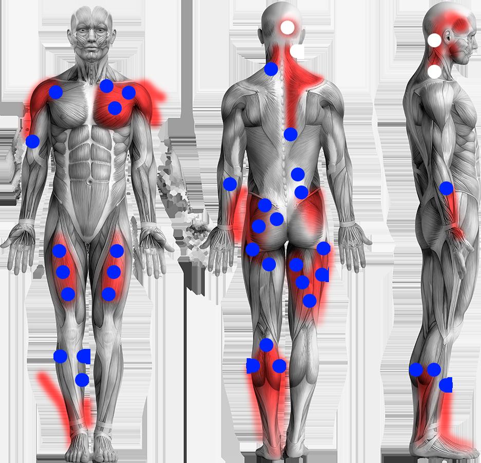 traitement douleur musculaire deux-sevres